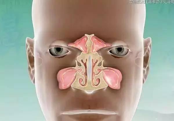 鼻炎竟是孩子视力的隐形杀手!快看!